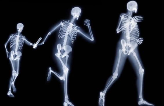 tener-huesos-sanos